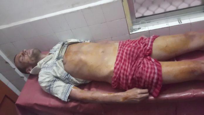 Foreign Iskcon Devotee Found Injured Condition At Puri Sea Beach (1)